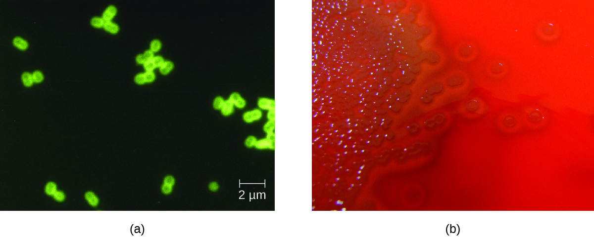 a)Micrograph of green closing circles in pairs on a dark background. Photograph of a red plate with brown colonies. Clearing is seen around the colonies.