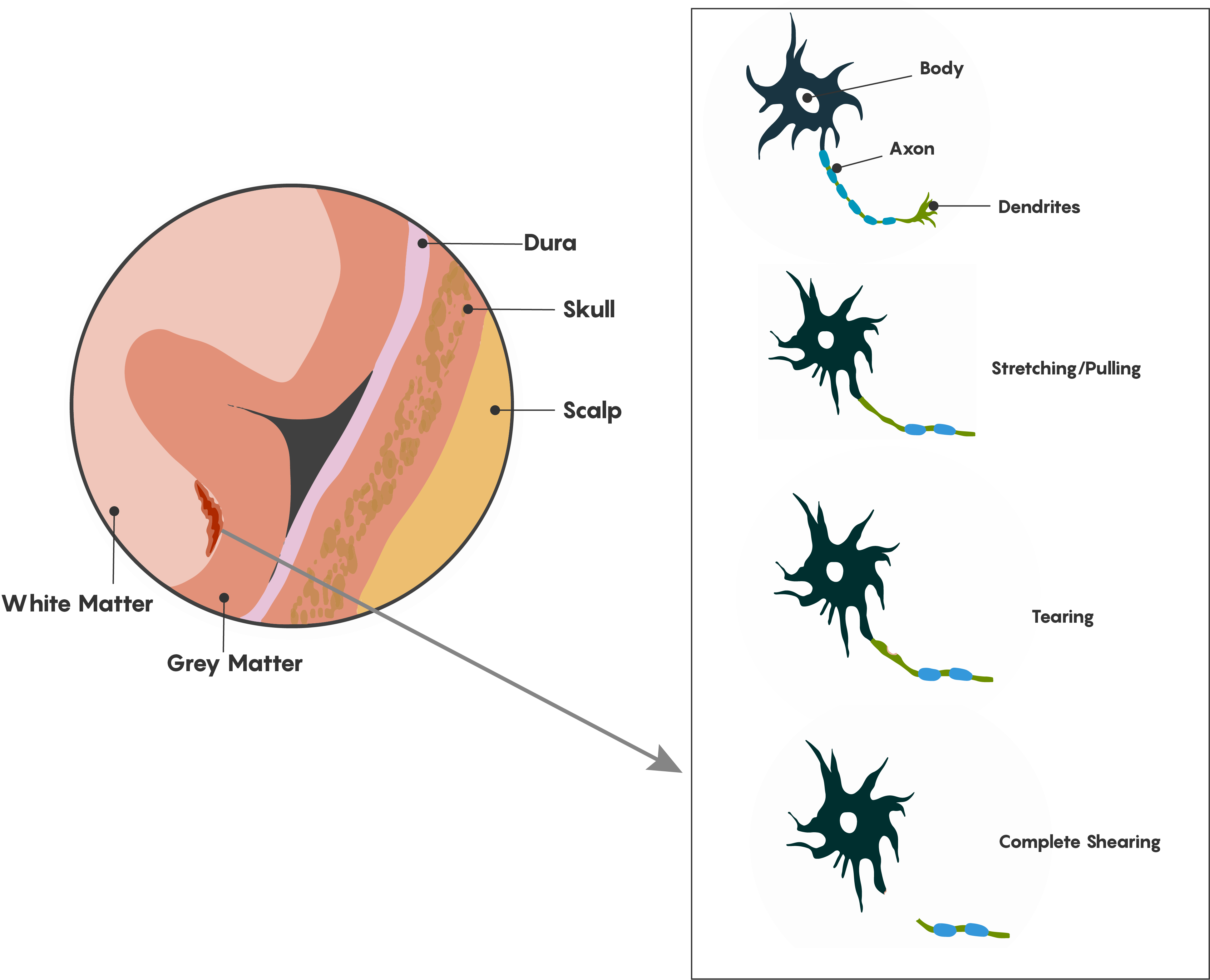 Schematic diagram of diffuse axonal injury following TBI/concussion.