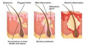 The three stages of acne plugged follicle, mild inflammation and marked inflammation