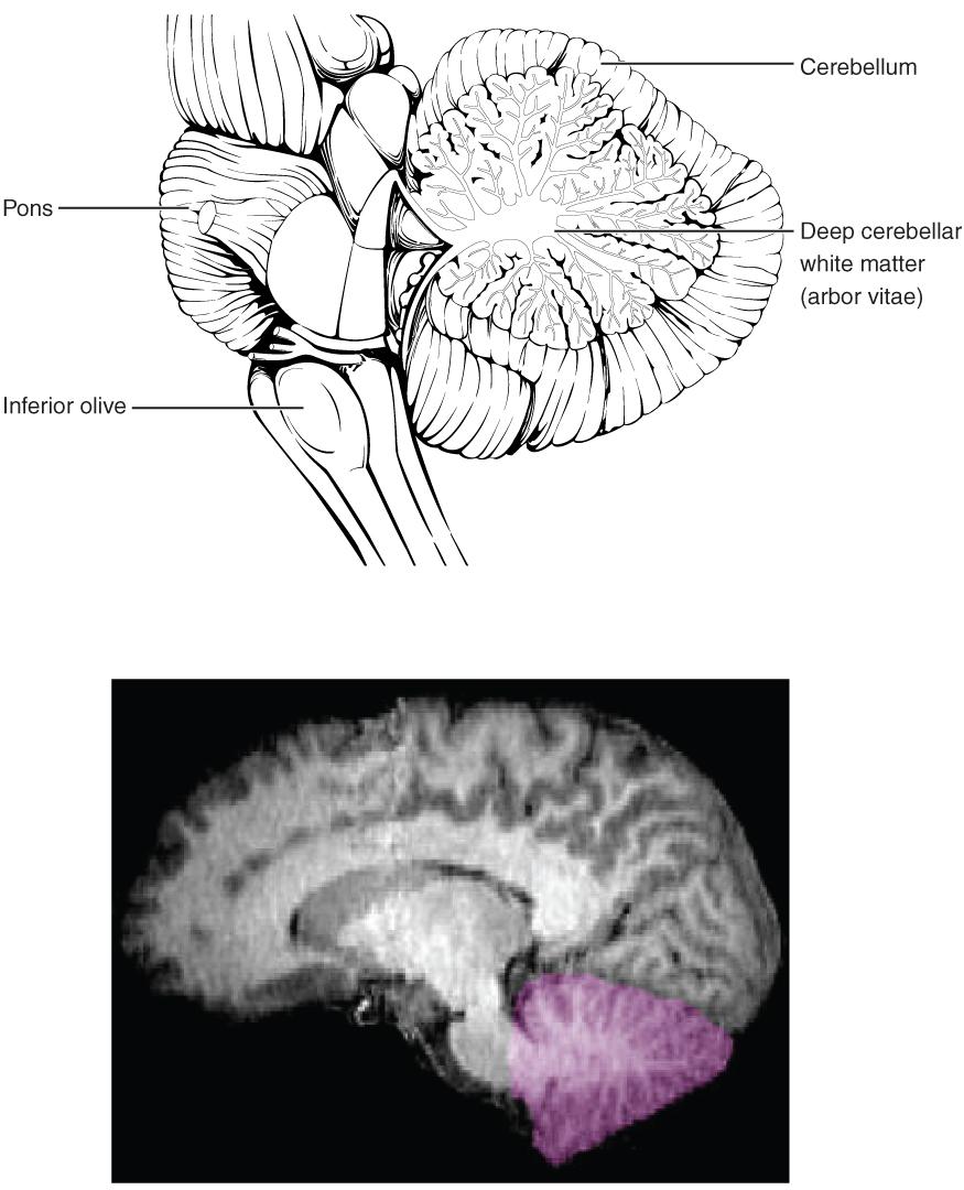 Location of the cerebellum in the brain. Image description available.