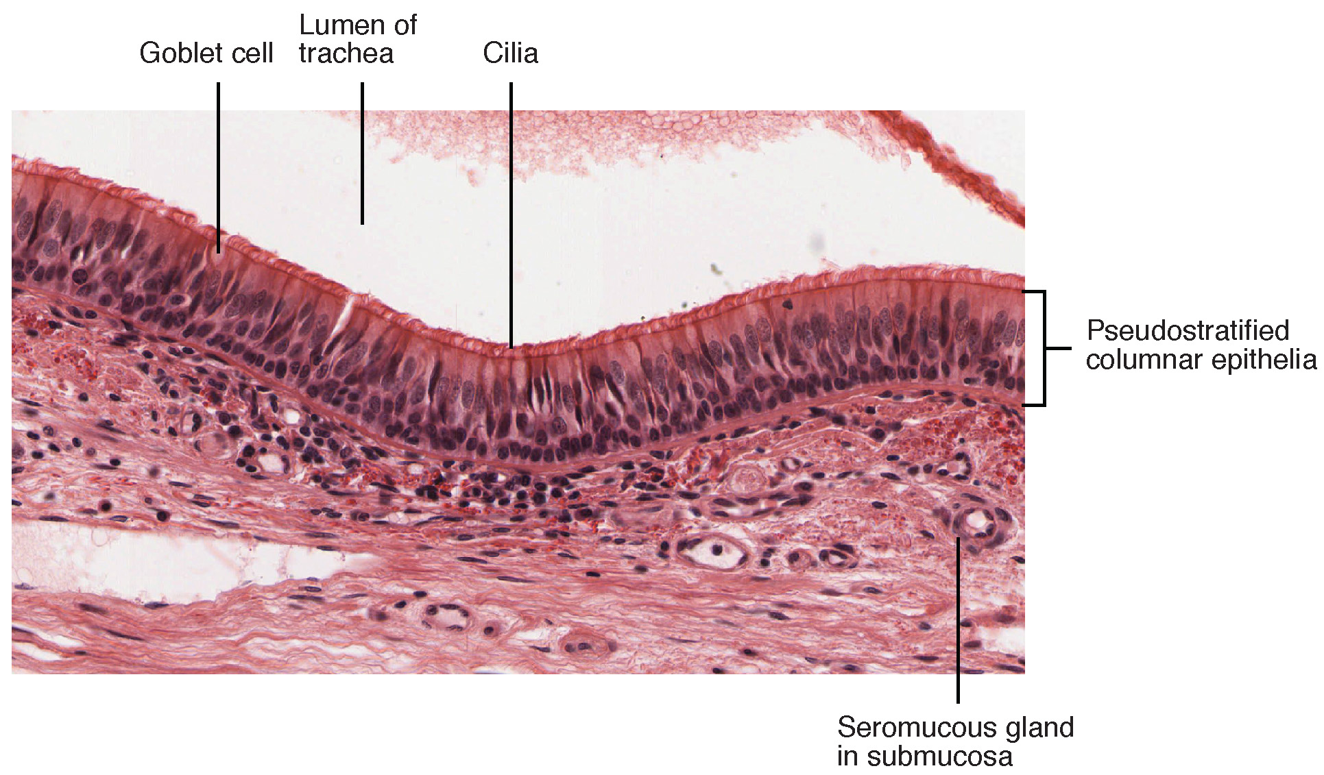 Pseudostratified Ciliated Columnar Epithelium. Image description available.