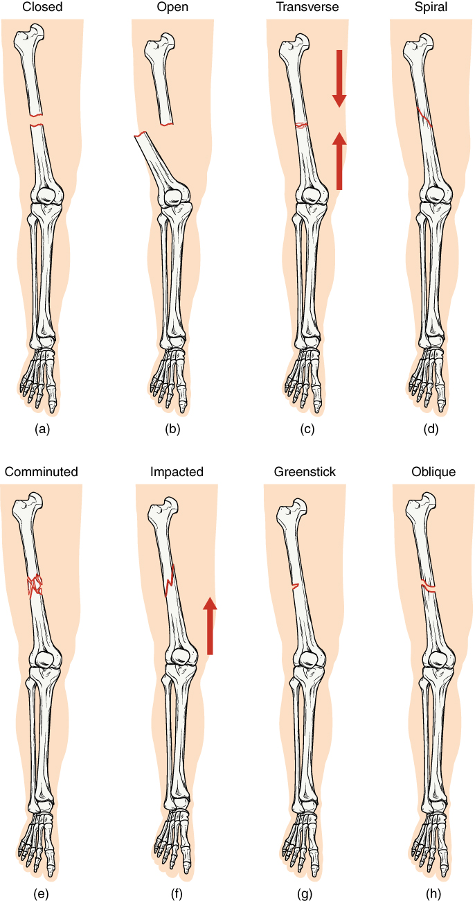 Types of fractures in the leg. Image description available.
